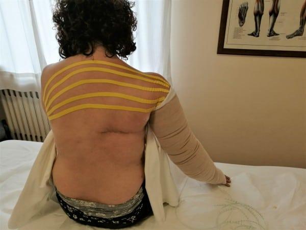 Linfedema da adenectomia ascellare