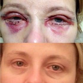 Edema periorbitale - prima e dopo DLM